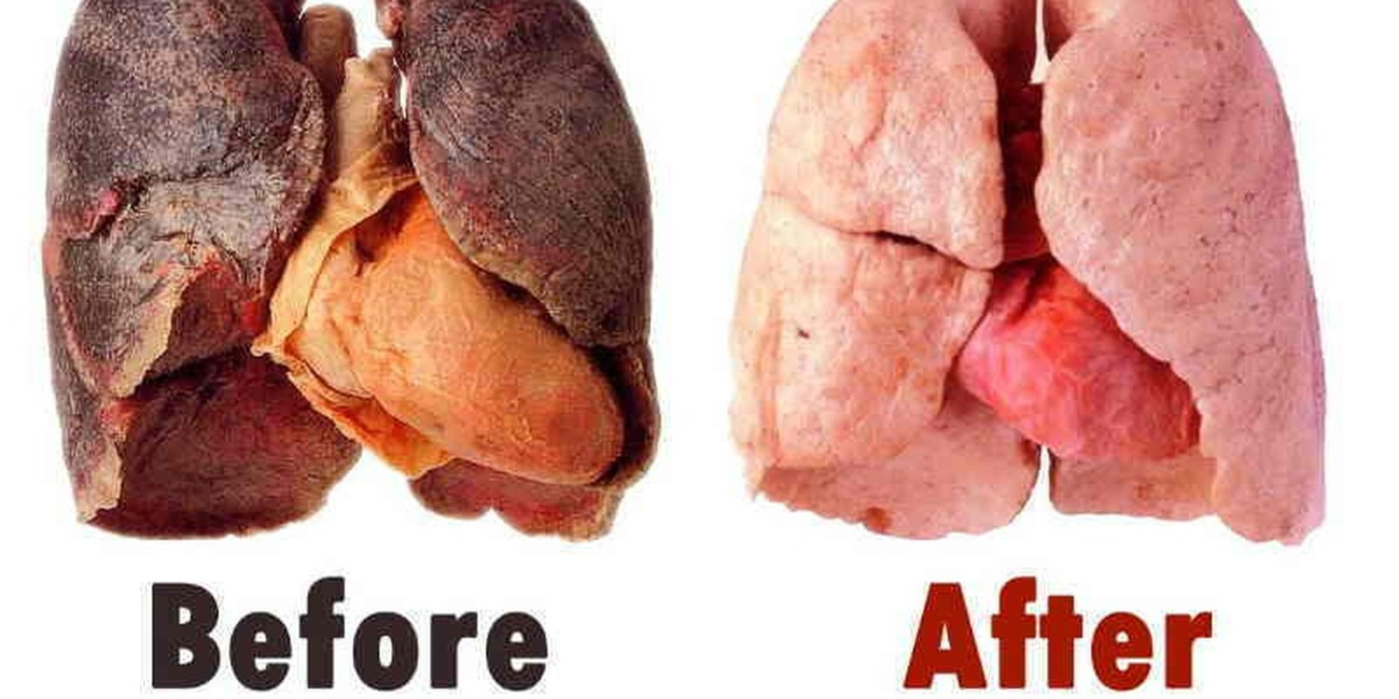 If You're A Smoker, You Need To Do This To Clean Your Lungs