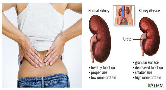 Is viagra bad for your kidneys