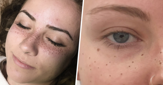 Freckles are the new beauty trend and people are tattooing for People getting tattoos