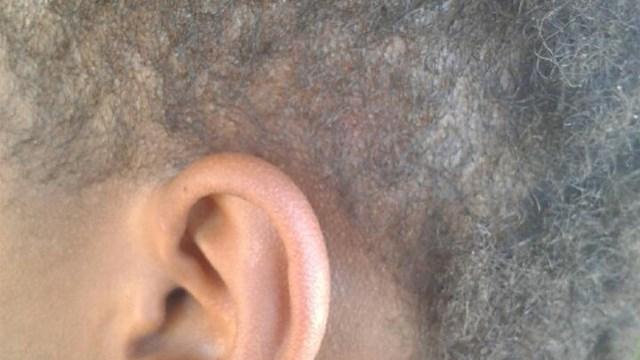 Ear Mark