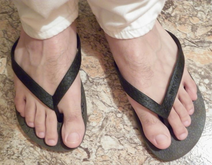 6 Reasons To Not Wear Flip Flops That Will Have You