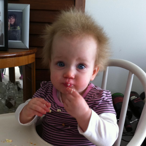 Bad Hair Day Girl: Little Girl's Rare Condition Makes Every Day The Most