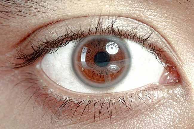 Ring around the cornea