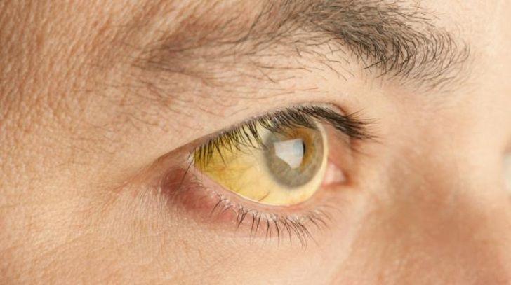 Yellowing eye
