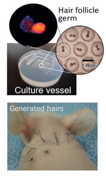 Hair follicle growth