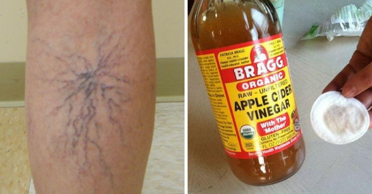 vinegar for spider veins