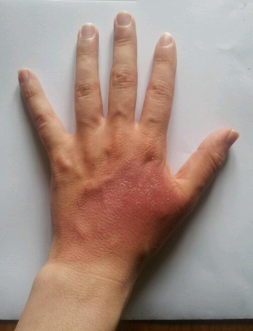Burn on a hand