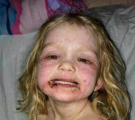 Age 3 Girl Hospitalized With Horrible Injuries After Playing
