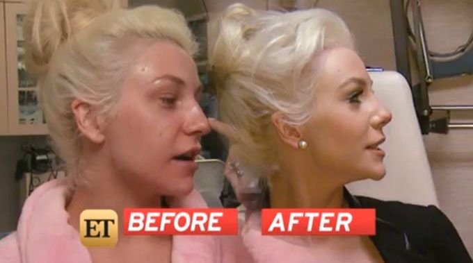 Courtney Stodden's Before and After pictures