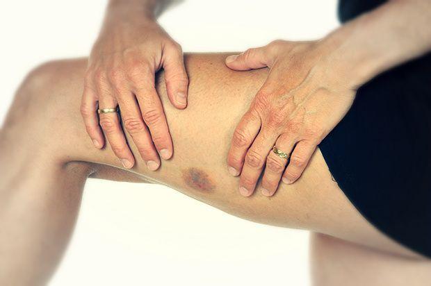 bruise on leg