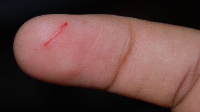 How to prevent paper cuts
