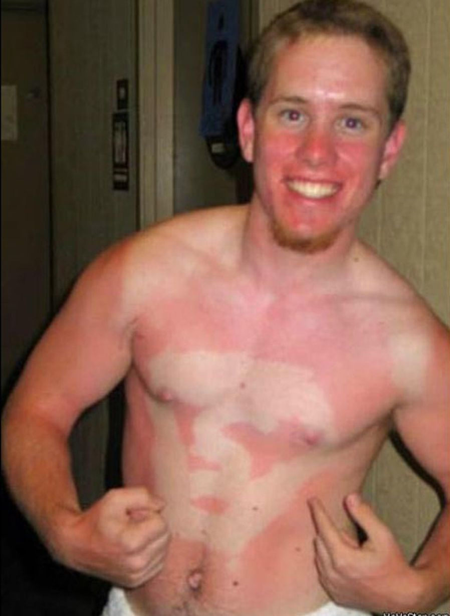 A sun tan line of the superman symbol