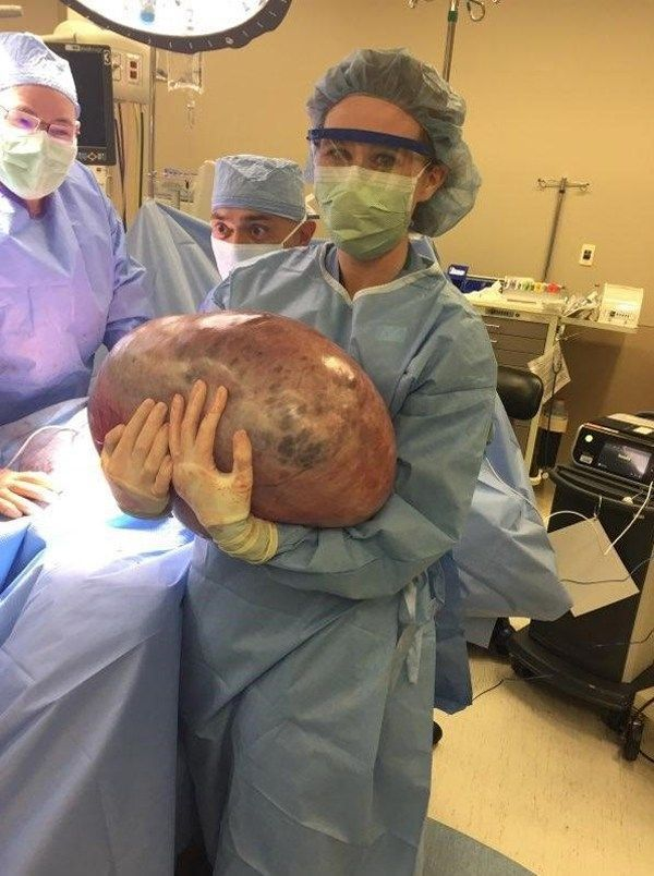 A doctor holding the 50 lb cyst