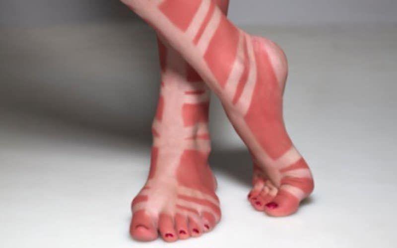 A sandal tan line