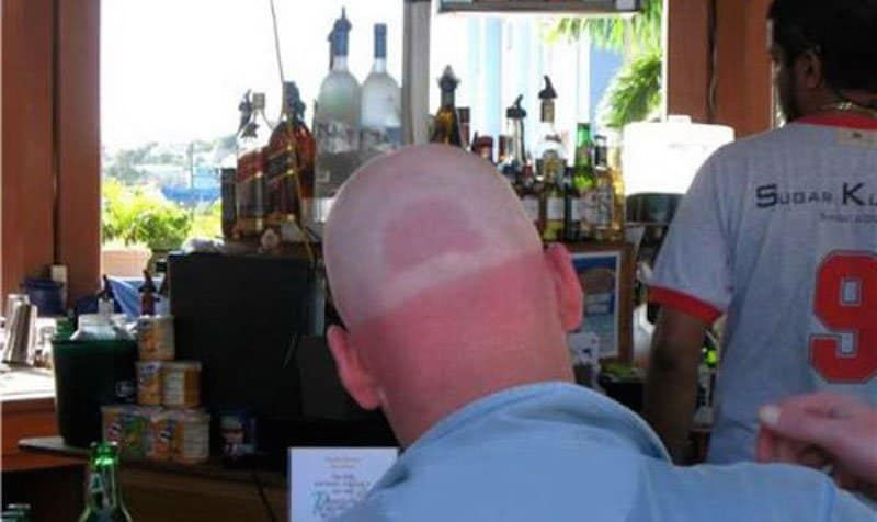 A tan line of a baseball cap