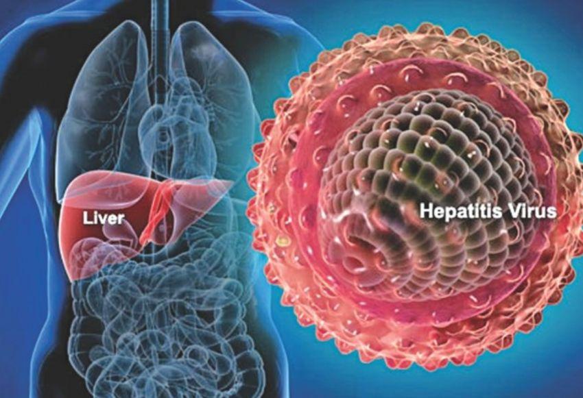 Hepatitis A graphic