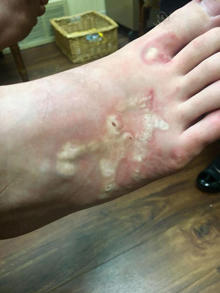 Michael's foot