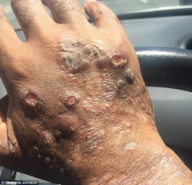 Dewayne Johnson's hand