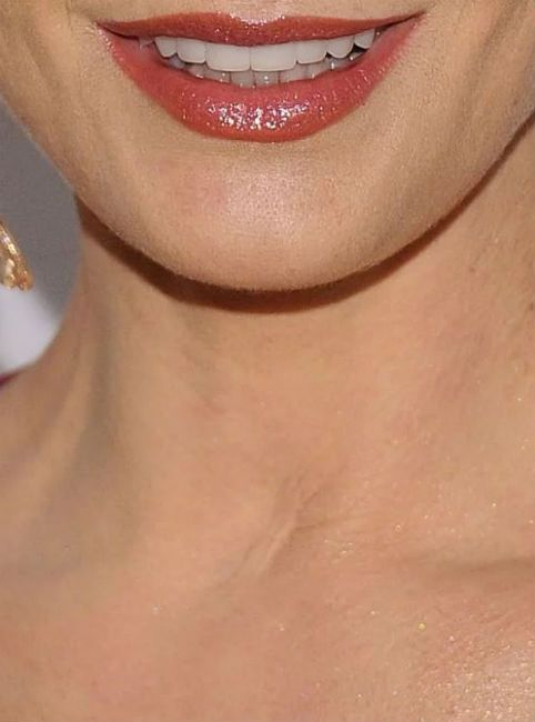 Catherine Zeta Jones scar