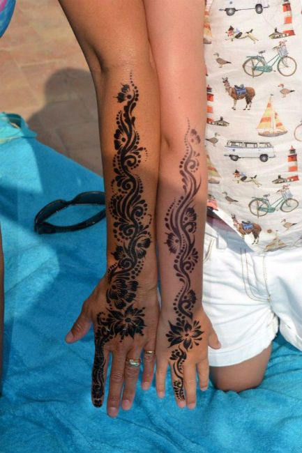 Henna burns