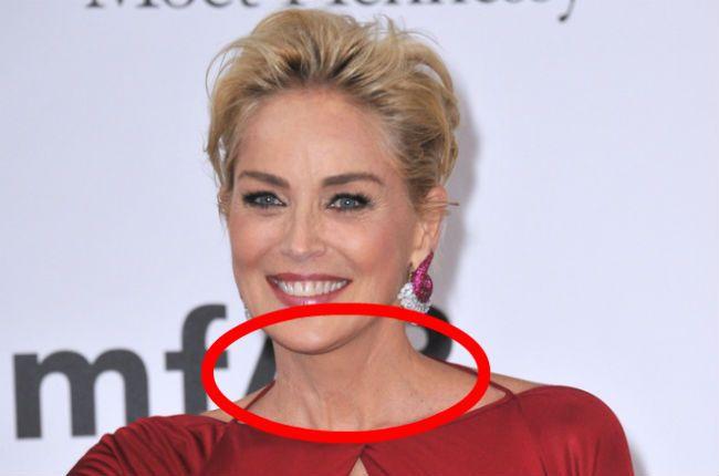 Sharon Stone scar