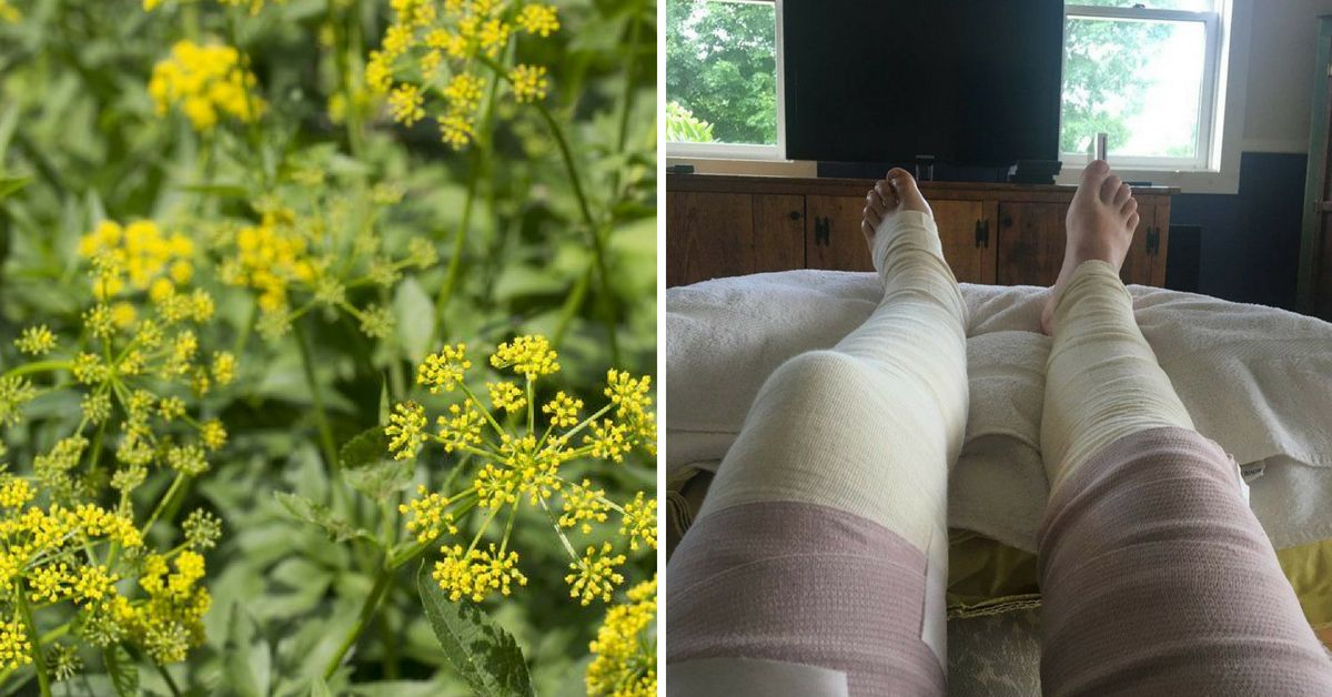 Woman Warns About Another Common Toxic Plant That Causes Severe Burns