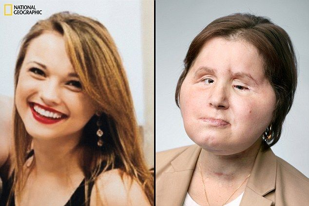 Katie before and after