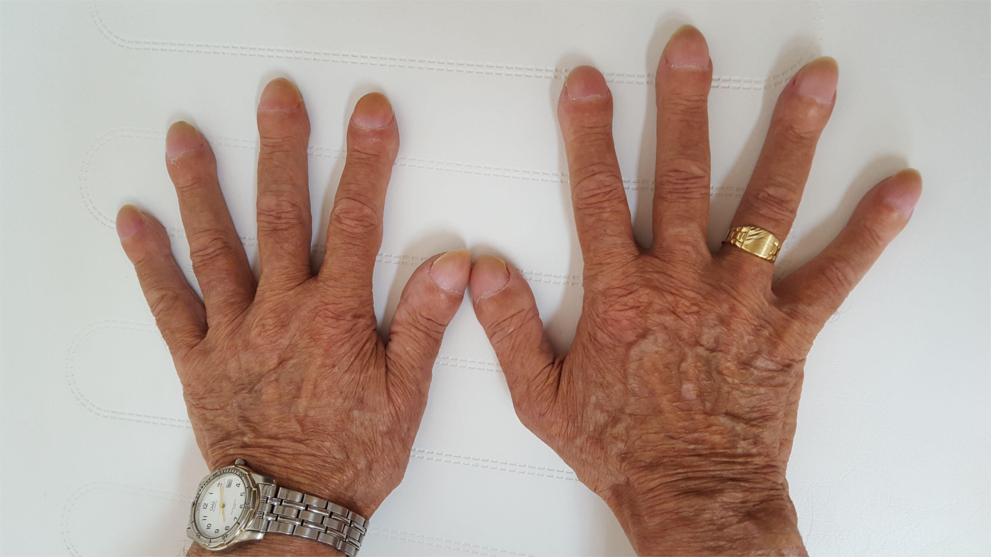 Clubber fingers