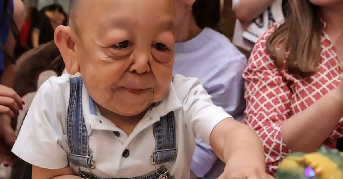 6-Year-Old Boy Who Looks Like Benjamin Button To Get ...