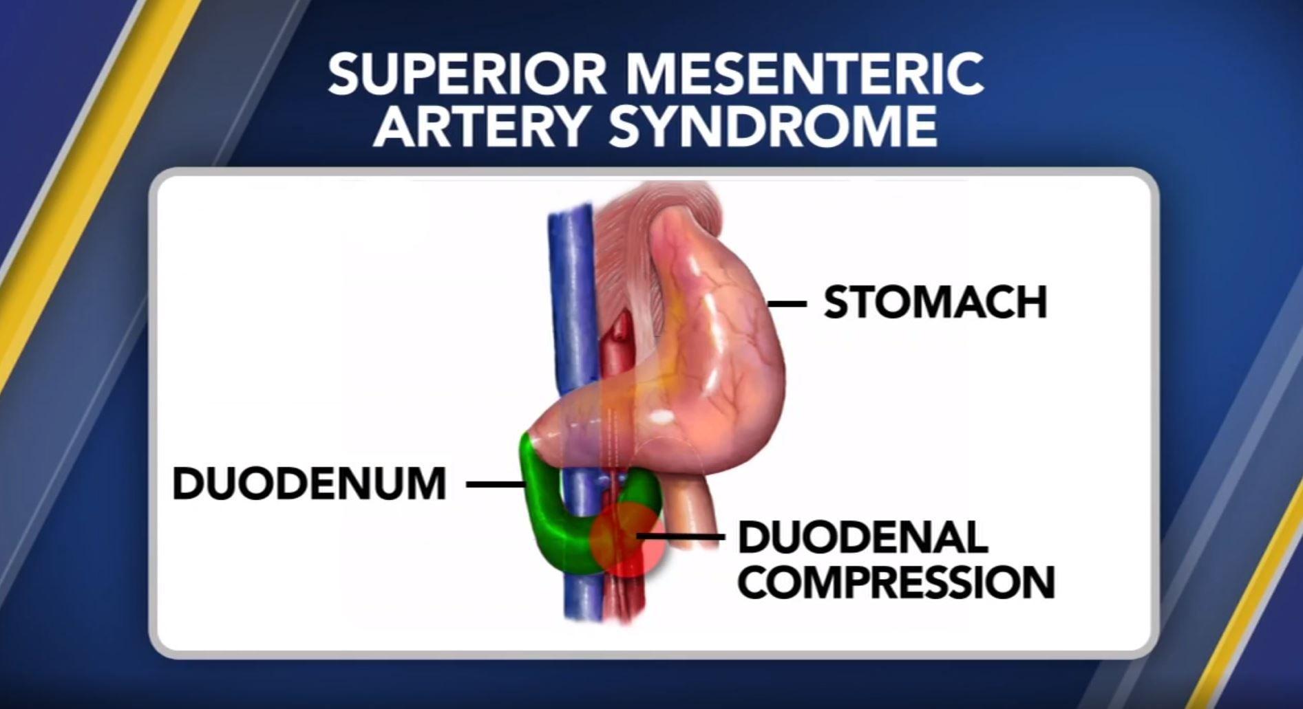 Superior Mesenteric Artery Syndrom