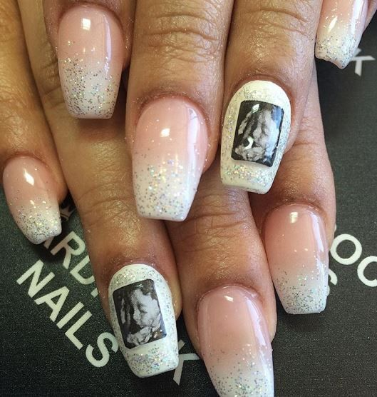 ultrasound nail art