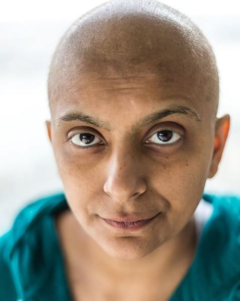 Fatima Ali showing off her bald head