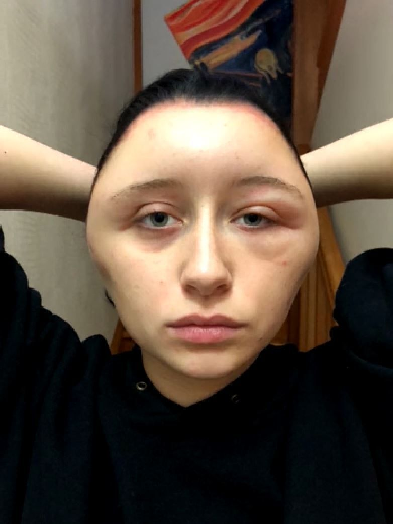 Estelle allergic reaction