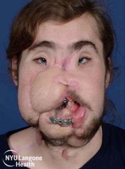 facial transplant