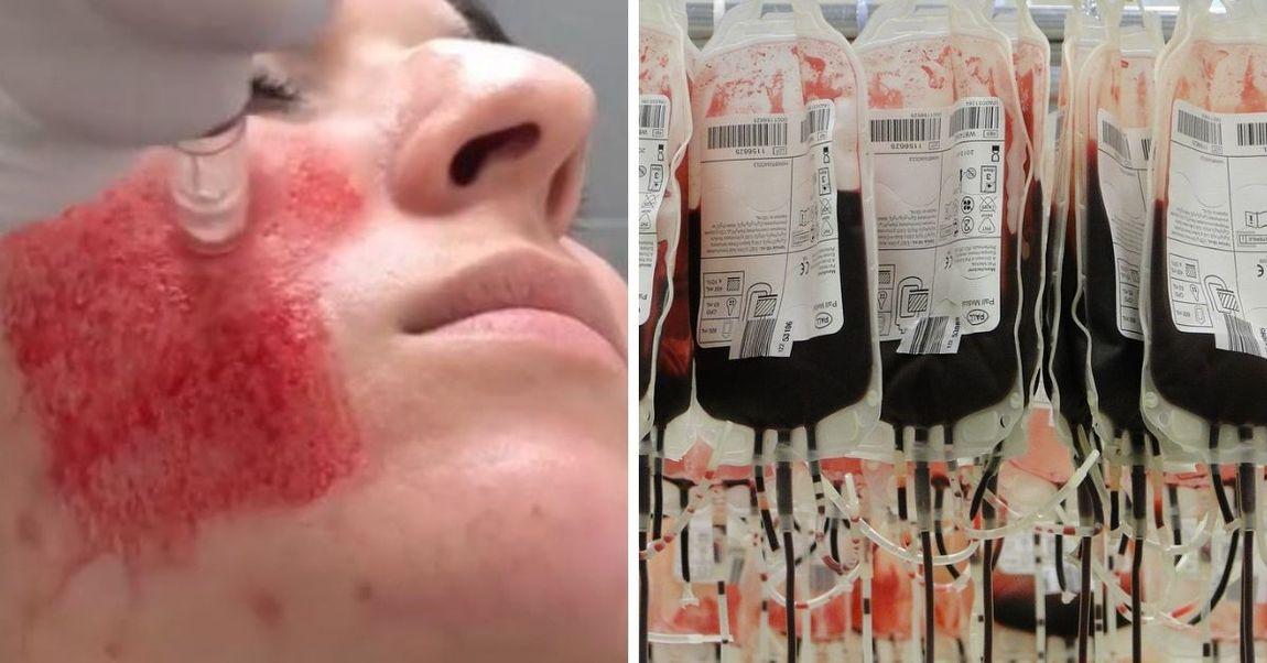 facial-blood-treatments