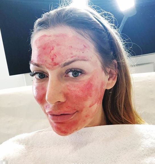 blood facial