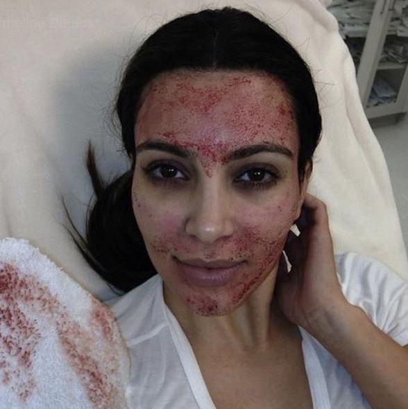 Kim Kardashian West vampire facial