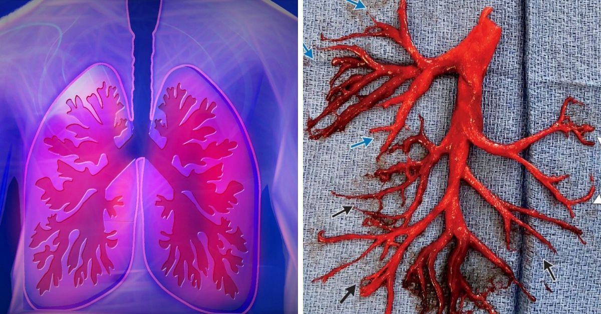 Man coughs up blood clot in shape of a lung
