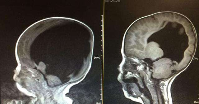 Noah Wall brain scan