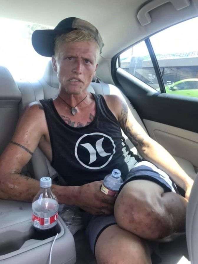 Mom Shares Photos That Showcase The Reality Of Addiction